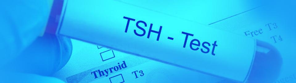 آزمایش TSH در منزل