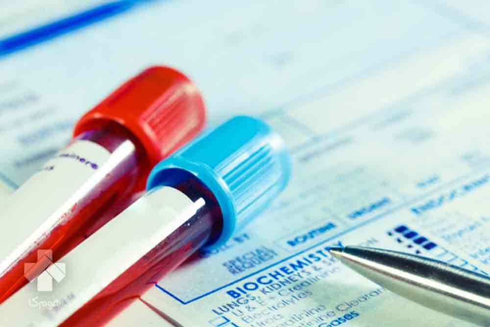 آزمایش دیابت بارداری